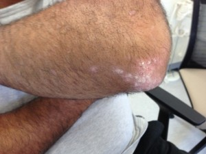 Psoriasis on the elbow