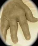 An image of a hand with Rheumatoid Arthritis
