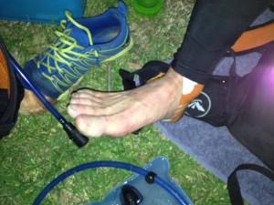 Errol's foot after 70km
