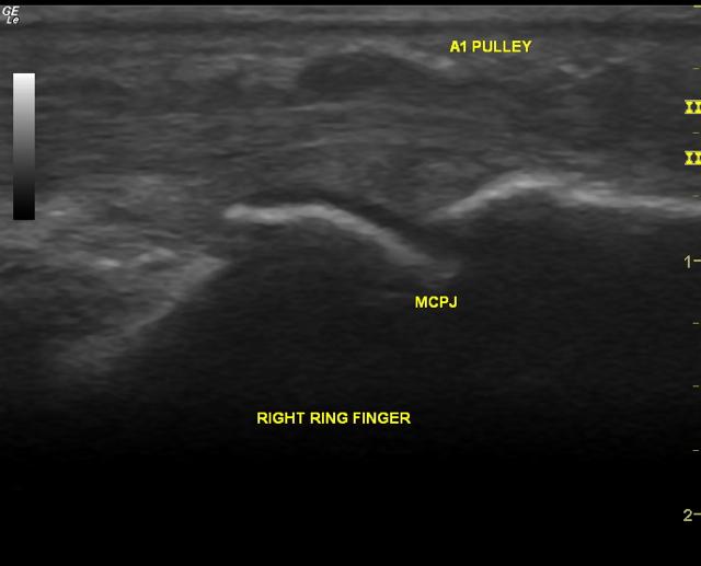 Ultrasound (longitudinal view) of a trigger finger