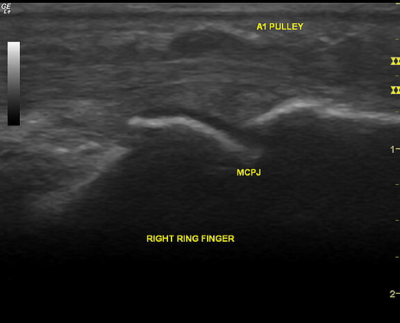 Ultrasound (longitudinal view) of a trigger finger
