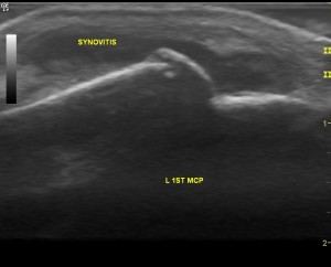 1st MCP joint (hand) showing active disease