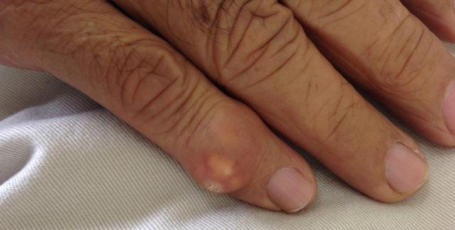 Tophi on little finger
