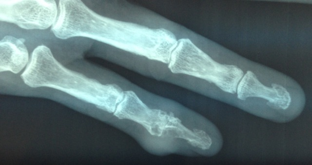 Tophus with underlying joint destruction