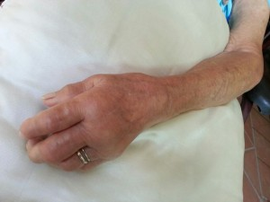 Hand Swelling