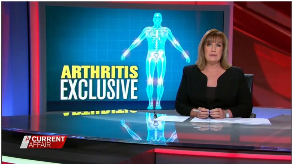 Arthritis Exclusive ACA