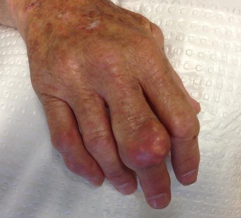 Large 3rd finger tophus