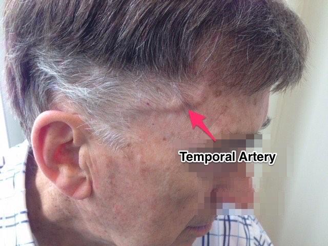 Temporal Arteritis
