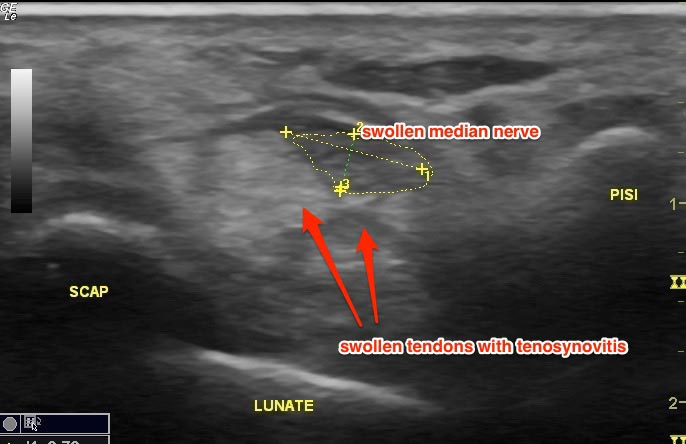 Ultrasound Image: Cross-section of Carpal Tunnel. (SCAP = scaphoid, PISI = pisiform)
