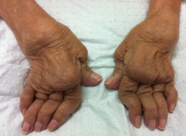 Rheumatoid Hands: late disease