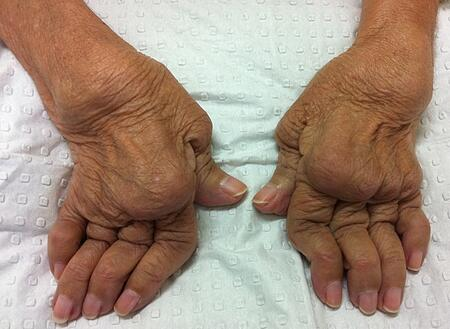 Rheumatoid Hands: late disease