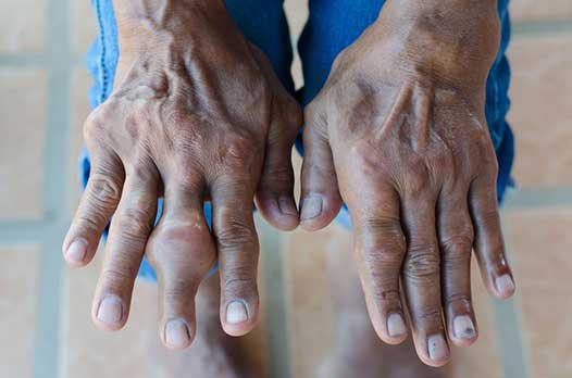ig 1. Joint destruction. A severe case of untreated gout.