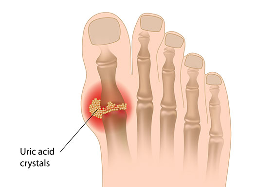 what are normal levels of uric acid best diet for gout patients natural supplements to lower uric acid