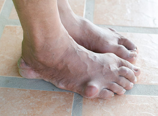 What-are-the-symptoms-and-signs-of-gout-.jpg