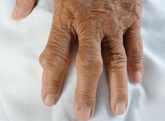What-are-the-symptoms-and-signs-of-gout.2.jpg