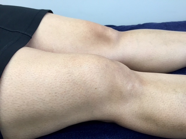 Knee Effusion 1.jpg