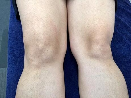 Knee Effusion 2.jpg