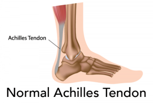 Normal Achilles Tendon Image