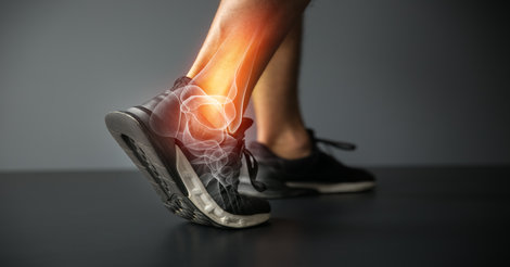 image of a foot with sprained ankle