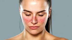 lupus-rash